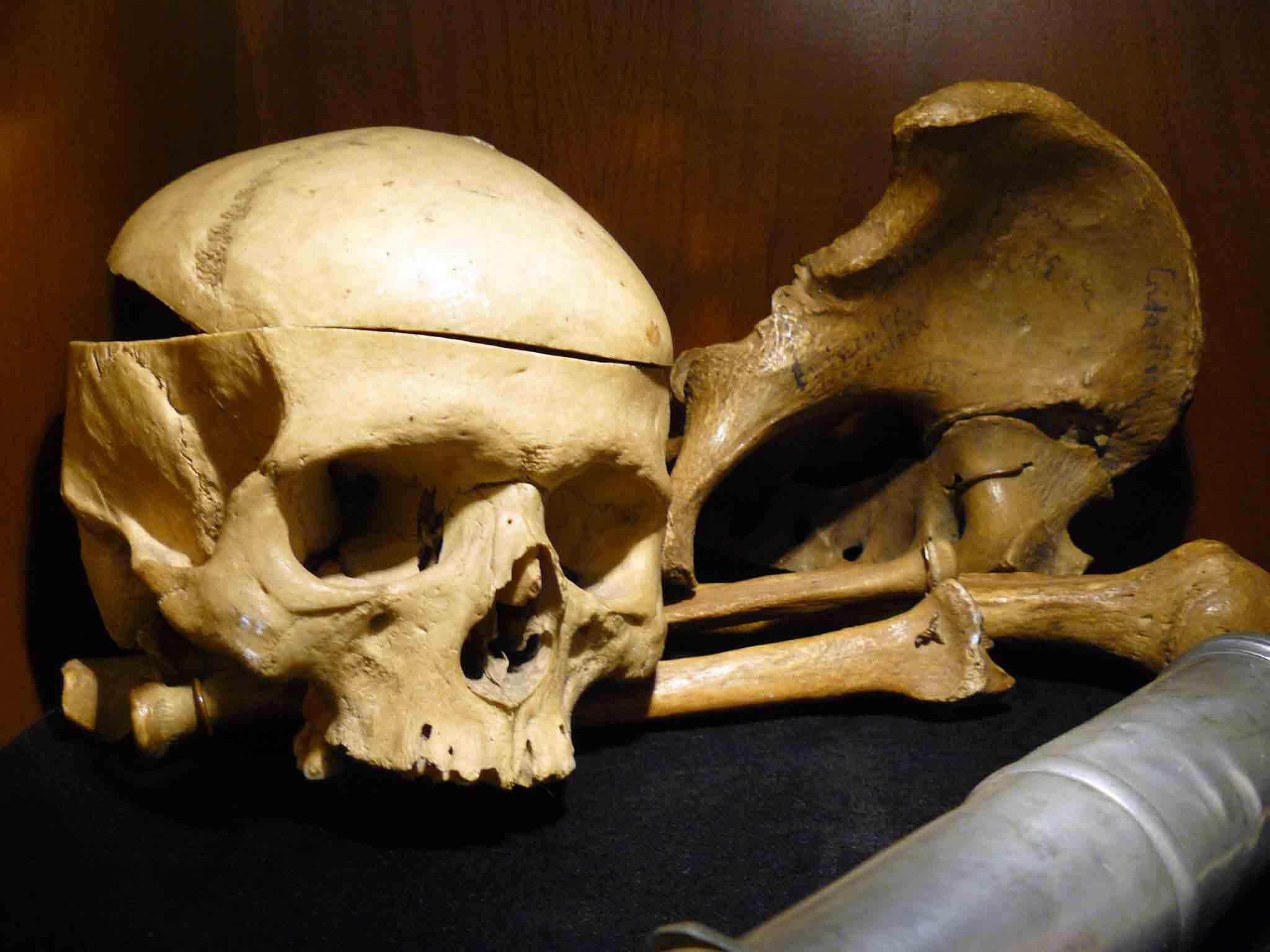 Schädel und Knochen aus der Universitätsapotheke